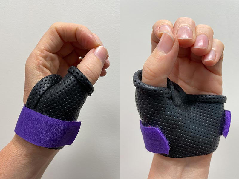Splint Front and Side